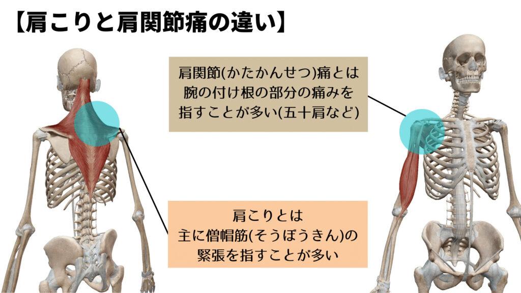 肩こりと肩関節痛の比較画像